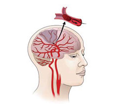 schematic of an ischemic stroke