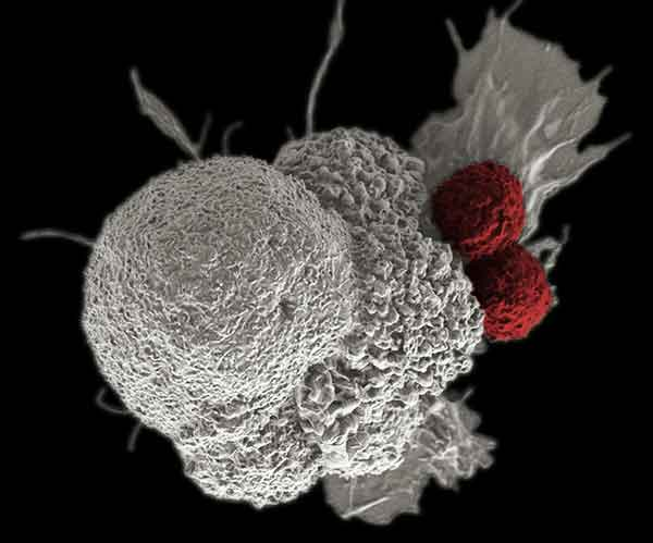 an immune cell (red) attacking a cancer cell (white)
