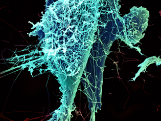 Magnified image of the ebola virus