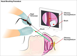 graphic showing gloved hands inserting rhinoscope in patient's nose