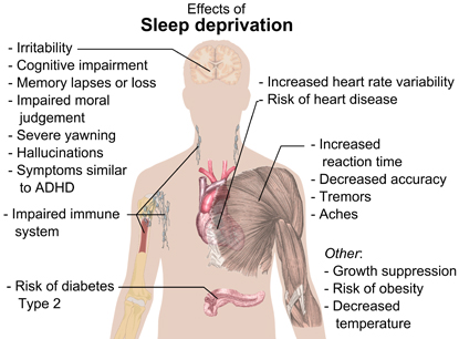 Image result for sleep fatigue