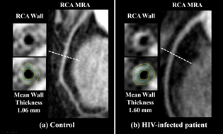 magnetic resonance images of cross-sections of coronary vessels