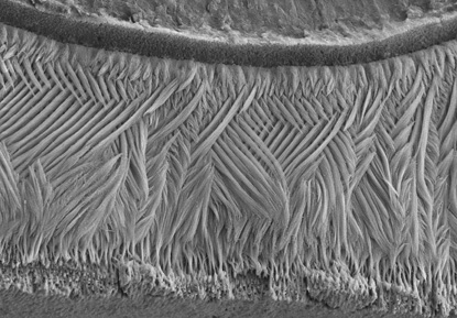 lattice pattern on tooth enamel looks like fibers in a macrame bracelet