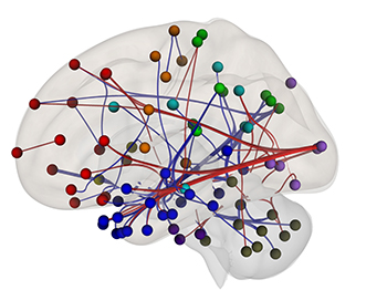 brain with red, blue, green, and orange tiny balls and connecting lines. See caption