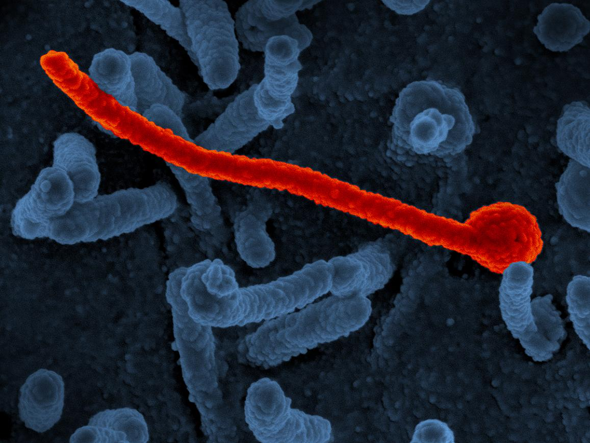 scanning electron micrograph of Ebola virus shown on the surface of Vero cells