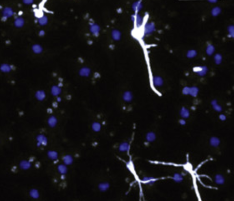 neurons (white) grown from neural stem cells