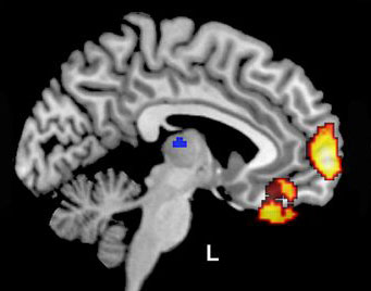 fMRI brain scan
