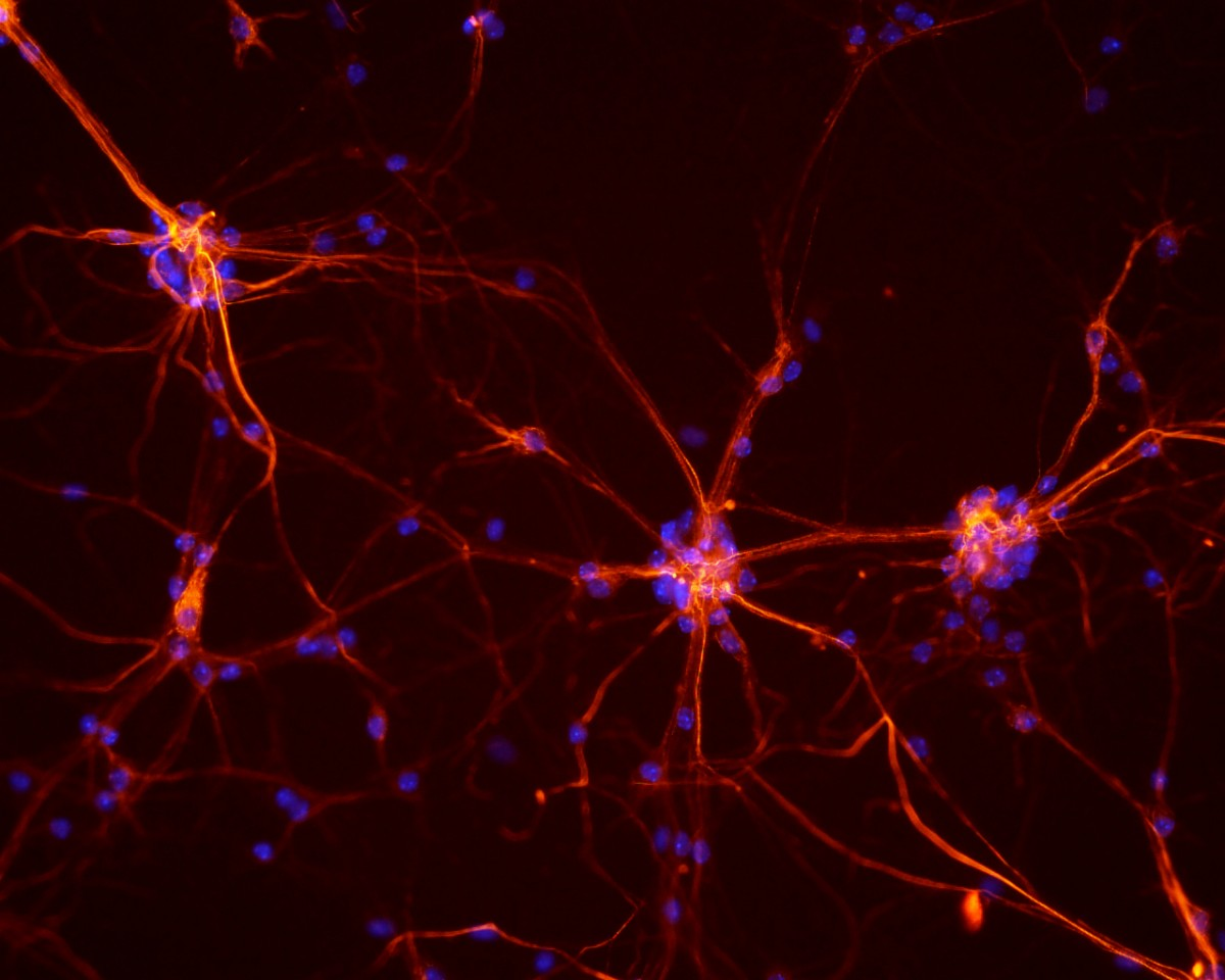 mouse spinal cord neurons