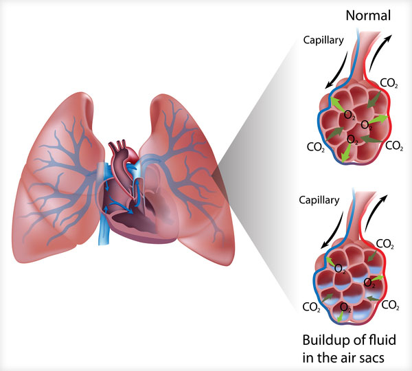 diagram of fluid buildup in the lungs' air sacs
