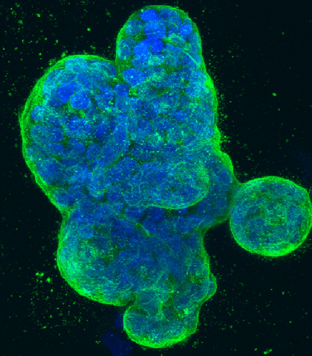 Three-dimensional culture of human breast cancer cells, with DNA stained blue and a protein in the cell surface membrane stained green.