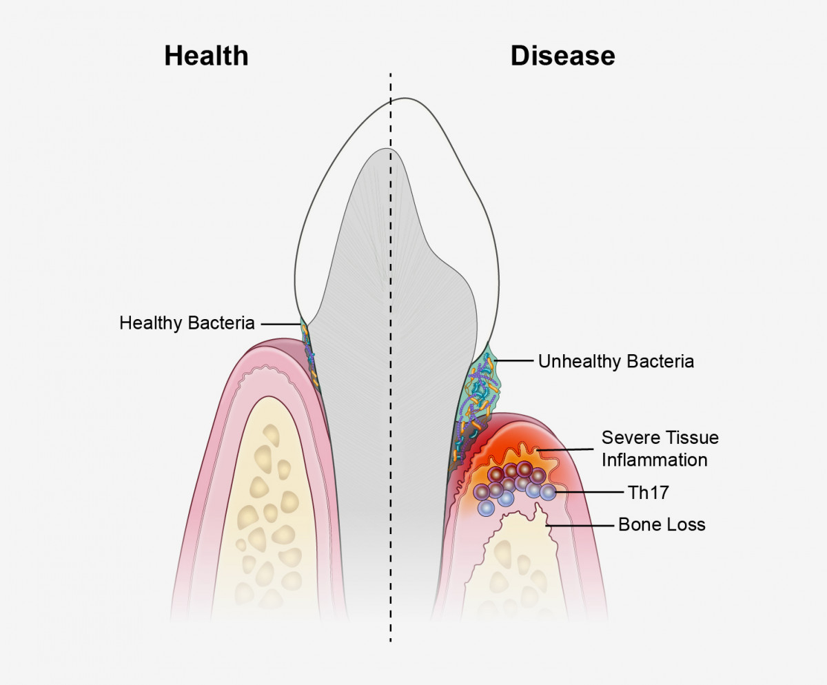 This diagram compares the conditions in a healthy mouth (left) to those in a mouth suffering from periodontitis (right).