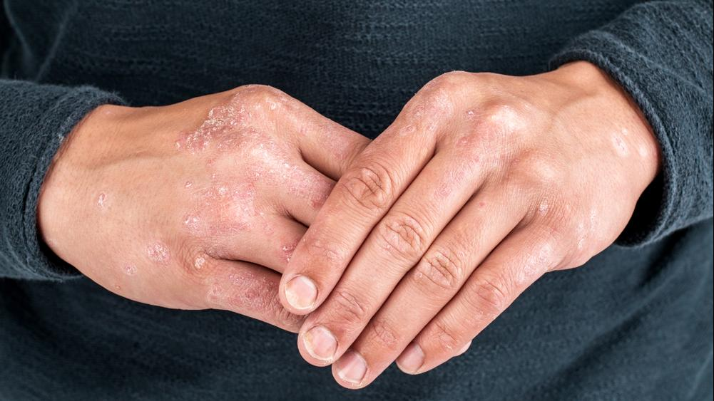 rash caused by psoriasis on hands