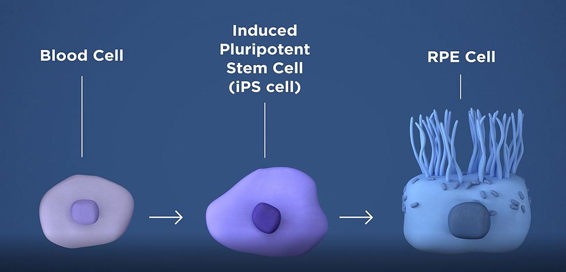 diagram of how patient's own blood cells can be transformed into retinal pigment epithelial cells