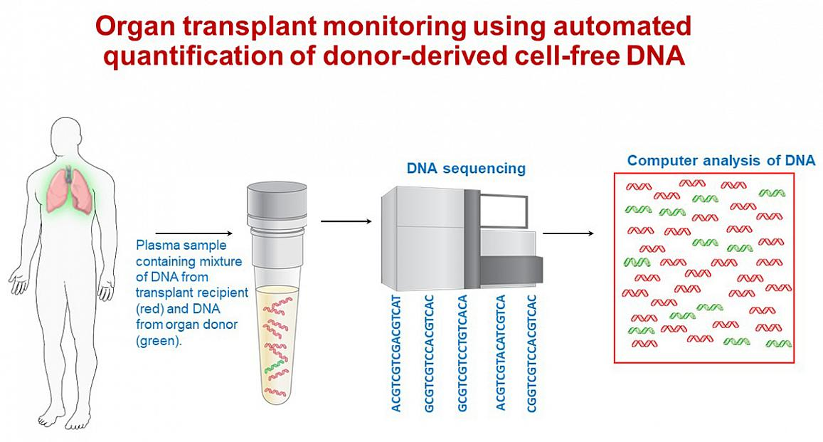 illustration of a new blood test that can identify early signs of lung transplant rejection