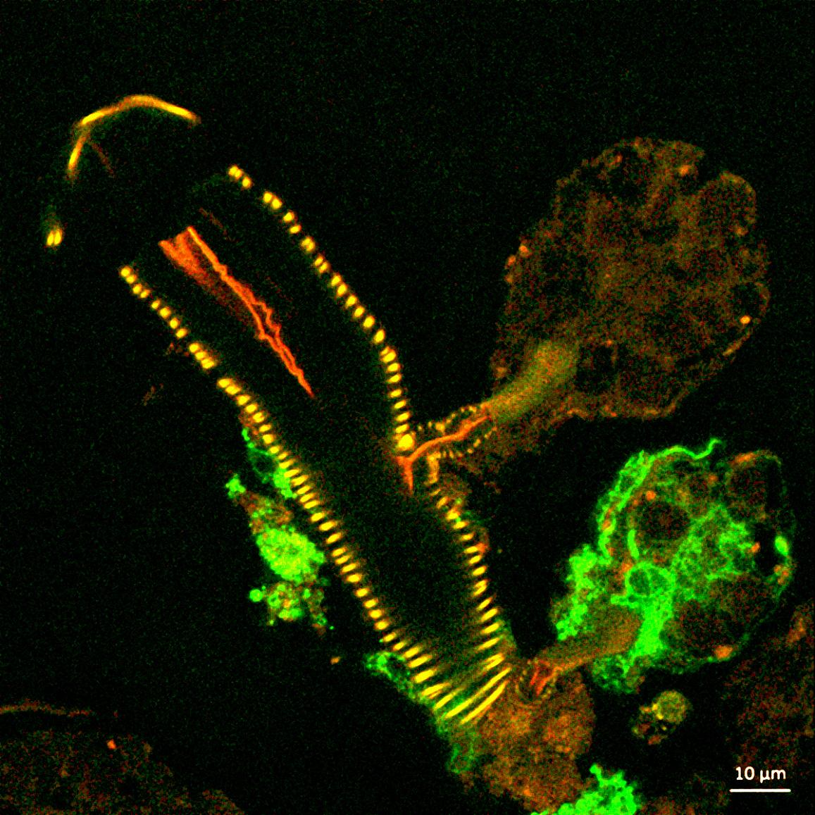 confocal microscope image showing a cross section of a tick salivary gland infected with Langat virus