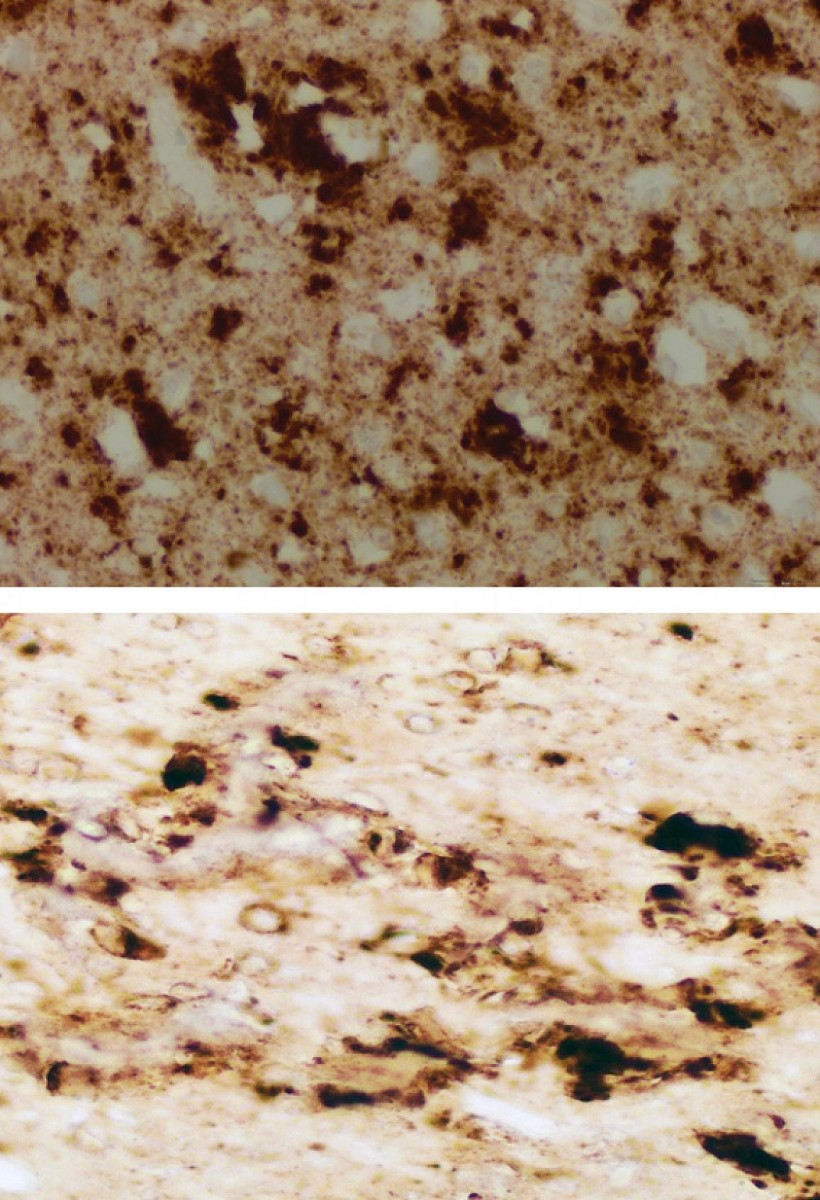 The brain of one patient who died from sporadic Creutzfeldt-Jacob disease (sCJD) appears nearly identical to the brain of a mouse inoculated with infectious prions taken from the skin of patients who died from sCJD.