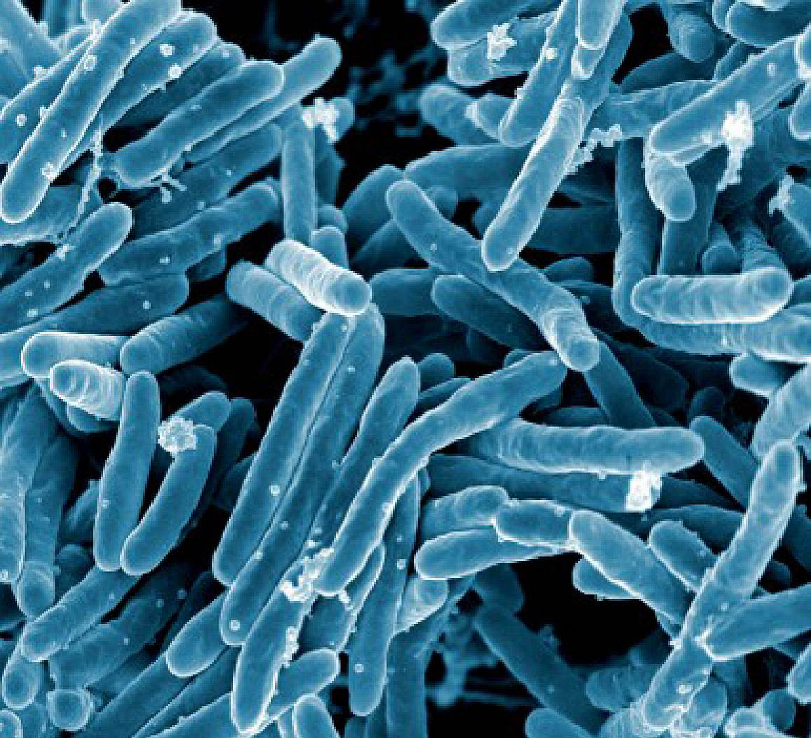 Mycobacterium tuberculosis bacteri, the cause of tuberculosis