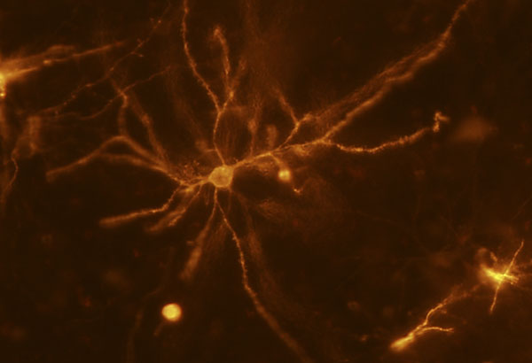 mouse striatal neurons